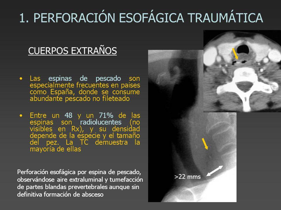 1. PERFORACIÓN ESOFÁGICA TRAUMÁTICA Las espinas de pescado son especialmente frecuentes en paises como España, donde se consume abundante pescado no f