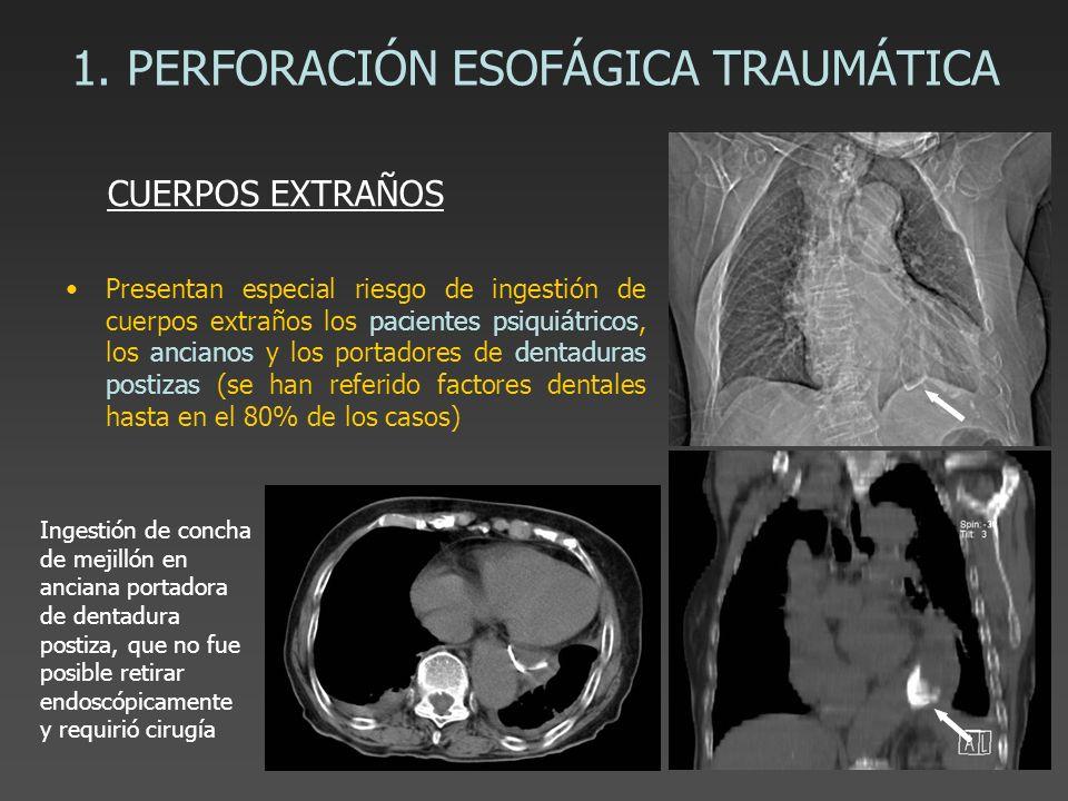 1. PERFORACIÓN ESOFÁGICA TRAUMÁTICA Presentan especial riesgo de ingestión de cuerpos extraños los pacientes psiquiátricos, los ancianos y los portado