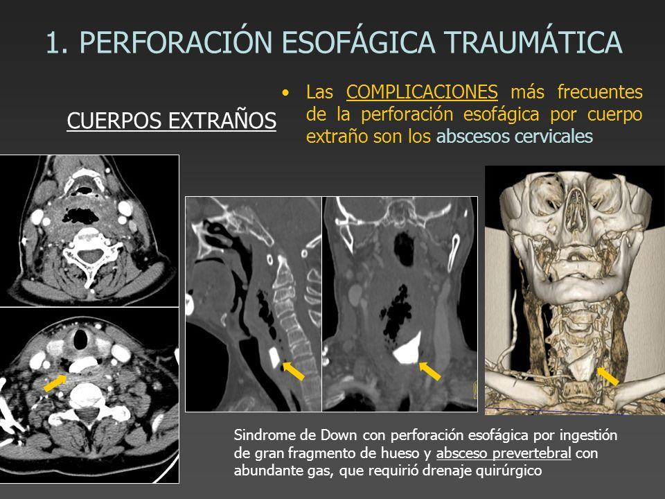1. PERFORACIÓN ESOFÁGICA TRAUMÁTICA Las COMPLICACIONES más frecuentes de la perforación esofágica por cuerpo extraño son los abscesos cervicales CUERP
