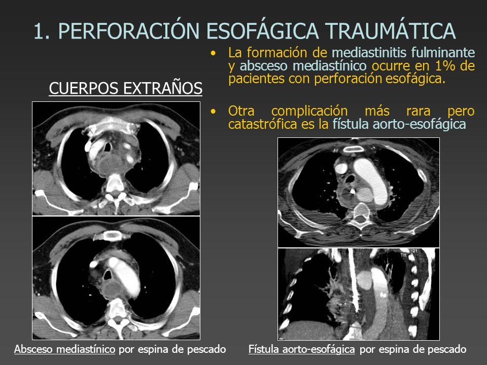 1. PERFORACIÓN ESOFÁGICA TRAUMÁTICA La formación de mediastinitis fulminante y absceso mediastínico ocurre en 1% de pacientes con perforación esofágic