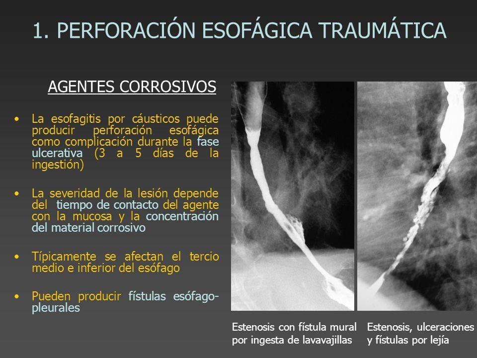 1. PERFORACIÓN ESOFÁGICA TRAUMÁTICA La esofagitis por cáusticos puede producir perforación esofágica como complicación durante la fase ulcerativa (3 a