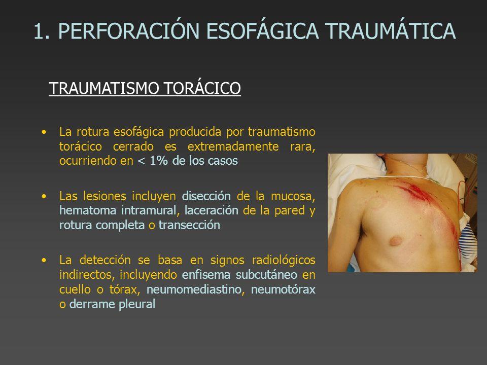 1. PERFORACIÓN ESOFÁGICA TRAUMÁTICA La rotura esofágica producida por traumatismo torácico cerrado es extremadamente rara, ocurriendo en < 1% de los c
