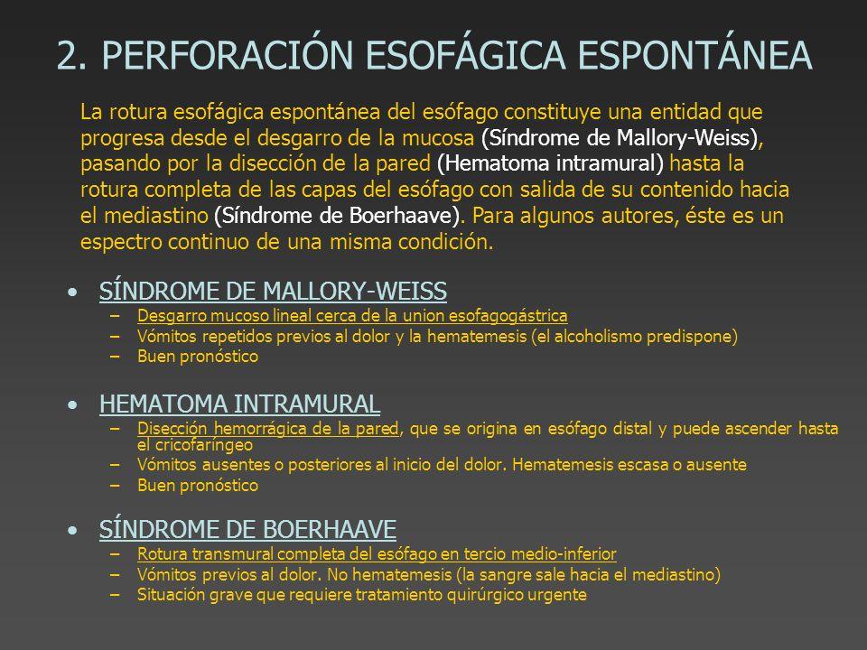 2. PERFORACIÓN ESOFÁGICA ESPONTÁNEA SÍNDROME DE MALLORY-WEISS –Desgarro mucoso lineal cerca de la union esofagogástrica –Vómitos repetidos previos al