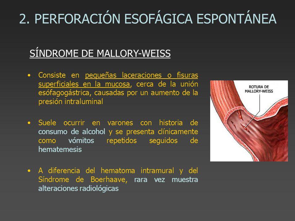 2. PERFORACIÓN ESOFÁGICA ESPONTÁNEA Consiste en pequeñas laceraciones o fisuras superficiales en la mucosa, cerca de la unión esófagogástrica, causada