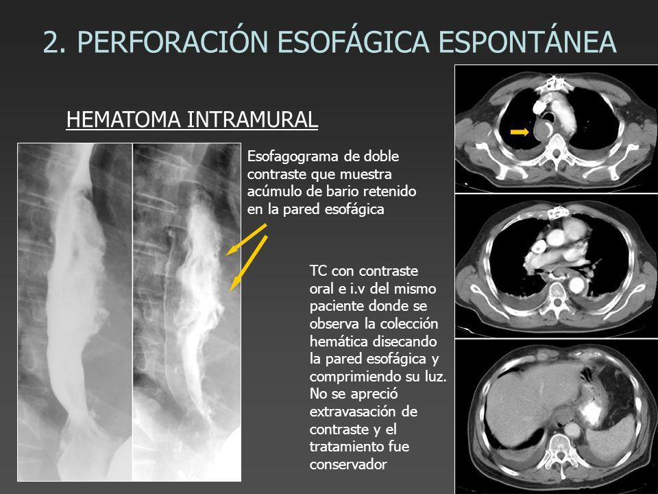 2. PERFORACIÓN ESOFÁGICA ESPONTÁNEA HEMATOMA INTRAMURAL Esofagograma de doble contraste que muestra acúmulo de bario retenido en la pared esofágica TC