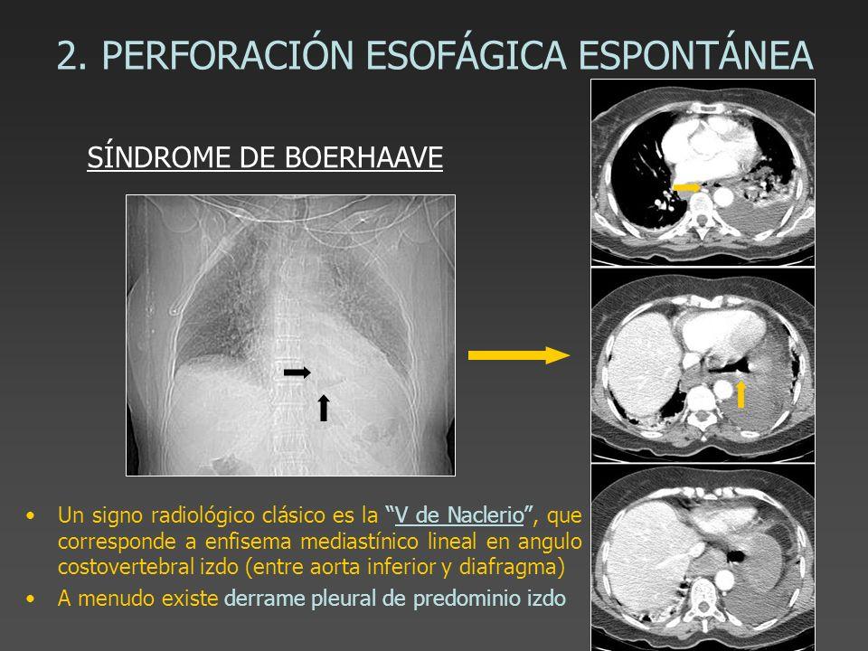 2. PERFORACIÓN ESOFÁGICA ESPONTÁNEA Un signo radiológico clásico es la V de Naclerio, que corresponde a enfisema mediastínico lineal en angulo costove
