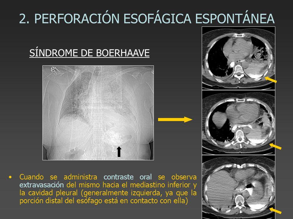 2. PERFORACIÓN ESOFÁGICA ESPONTÁNEA Cuando se administra contraste oral se observa extravasación del mismo hacia el mediastino inferior y la cavidad p