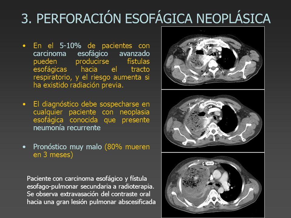 3. PERFORACIÓN ESOFÁGICA NEOPLÁSICA En el 5-10% de pacientes con carcinoma esofágico avanzado pueden producirse fístulas esofágicas hacia el tracto re