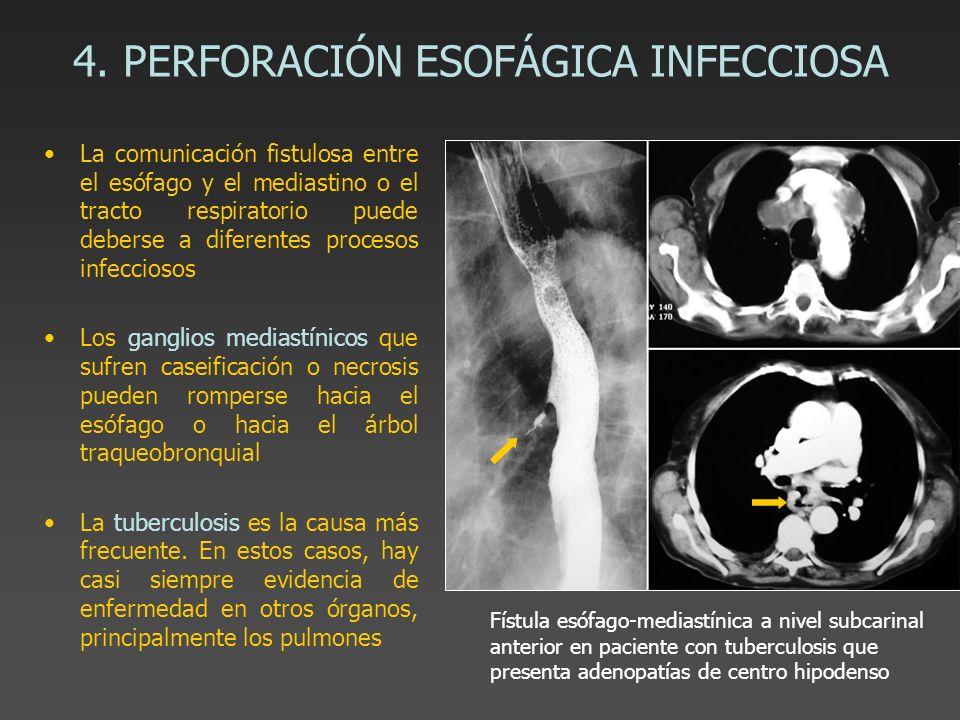 4. PERFORACIÓN ESOFÁGICA INFECCIOSA La comunicación fistulosa entre el esófago y el mediastino o el tracto respiratorio puede deberse a diferentes pro