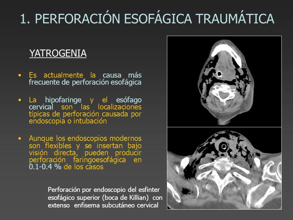 1. PERFORACIÓN ESOFÁGICA TRAUMÁTICA Es actualmente la causa más frecuente de perforación esofágica La hipofaringe y el esófago cervical son las locali