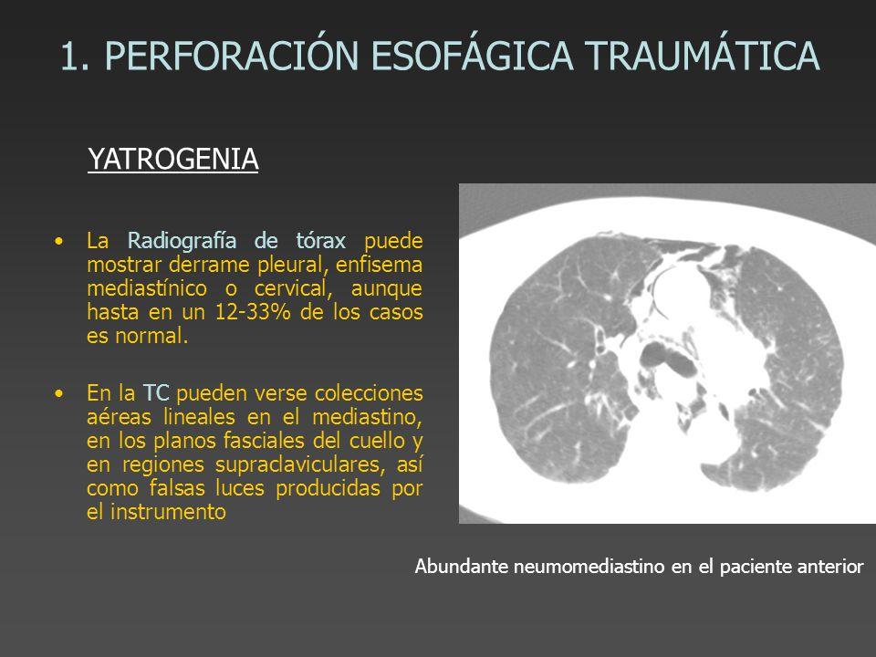 1. PERFORACIÓN ESOFÁGICA TRAUMÁTICA La Radiografía de tórax puede mostrar derrame pleural, enfisema mediastínico o cervical, aunque hasta en un 12-33%