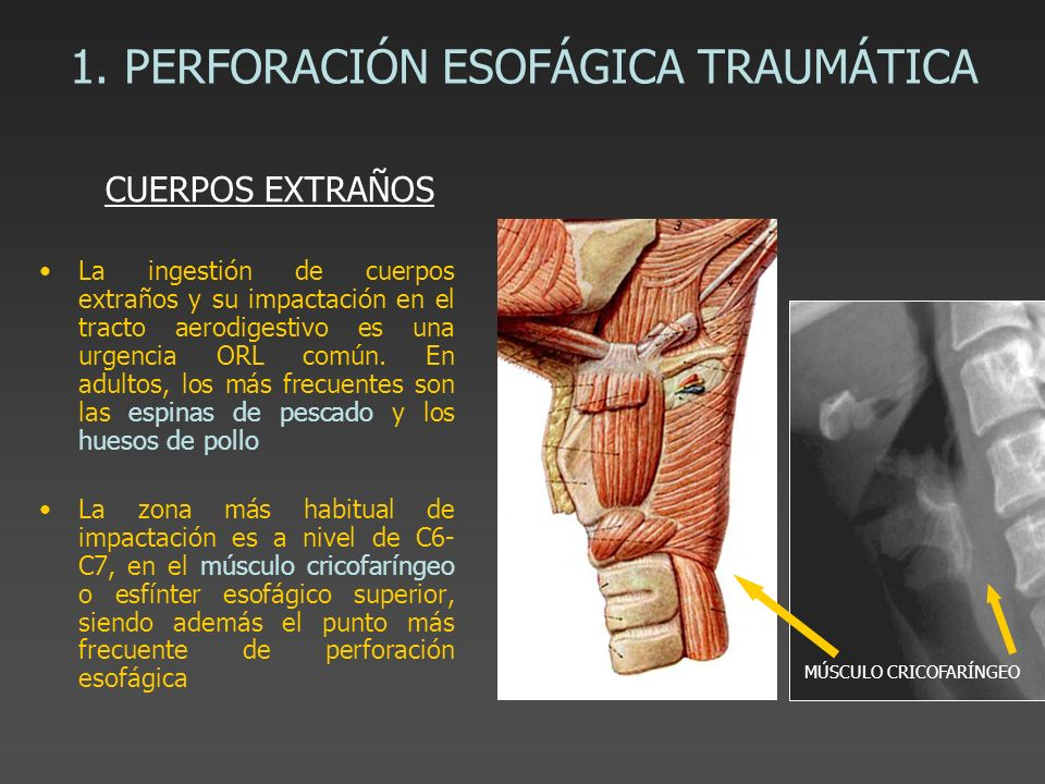 1. PERFORACIÓN ESOFÁGICA TRAUMÁTICA La ingestión de cuerpos extraños y su impactación en el tracto aerodigestivo es una urgencia ORL común. En adultos