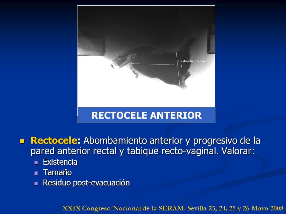 Rectocele: Abombamiento anterior y progresivo de la pared anterior rectal y tabique recto-vaginal. Valorar: Rectocele: Abombamiento anterior y progres