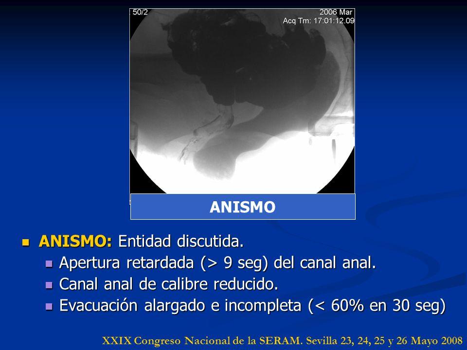 ANISMO: Entidad discutida. ANISMO: Entidad discutida. Apertura retardada (> 9 seg) del canal anal. Apertura retardada (> 9 seg) del canal anal. Canal