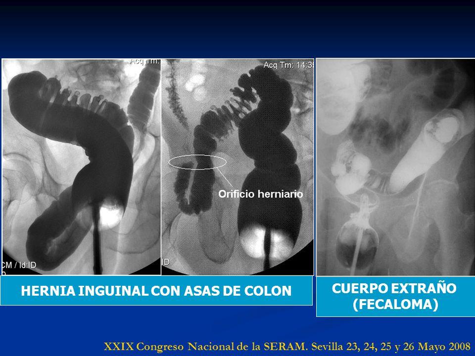 CUERPO EXTRAÑO (FECALOMA) XXIX Congreso Nacional de la SERAM. Sevilla 23, 24, 25 y 26 Mayo 2008 HERNIA INGUINAL CON ASAS DE COLON