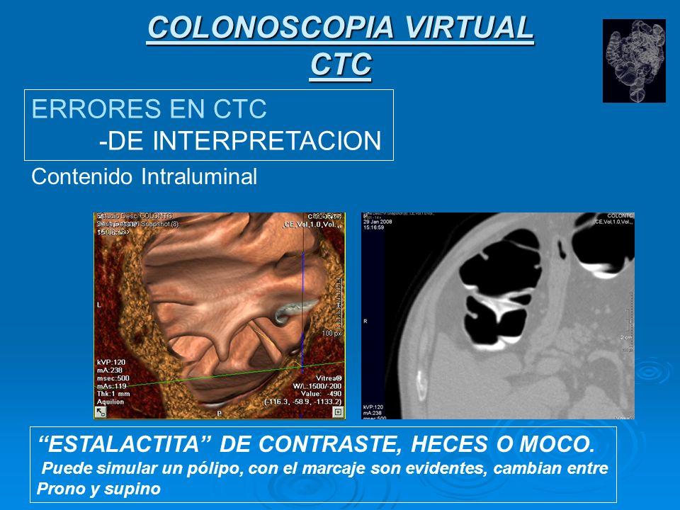 COLONOSCOPIA VIRTUAL CTC Pliegues gruesos.(distensión inadecuada, espasmos) Pliegues gruesos.