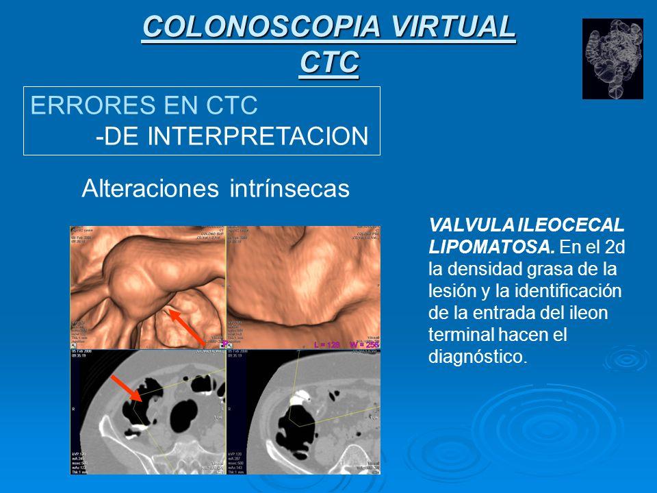 COLONOSCOPIA VIRTUAL CTC ERRORES EN CTC -DE INTERPRETACION Alteraciones intrínsecas Introito del apéndice cecal.