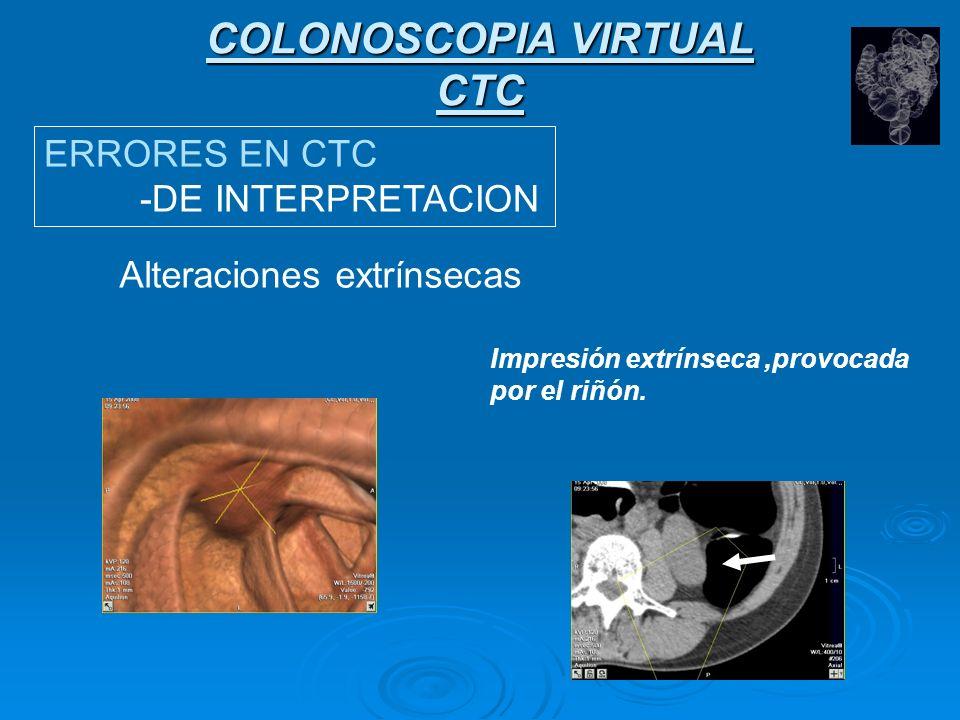 COLONOSCOPIA VIRTUAL CTC ERRORES EN CTC -DE INTERPRETACION Alteraciones extrínsecas Impresión extrínseca provocada por el estómago colapsado.