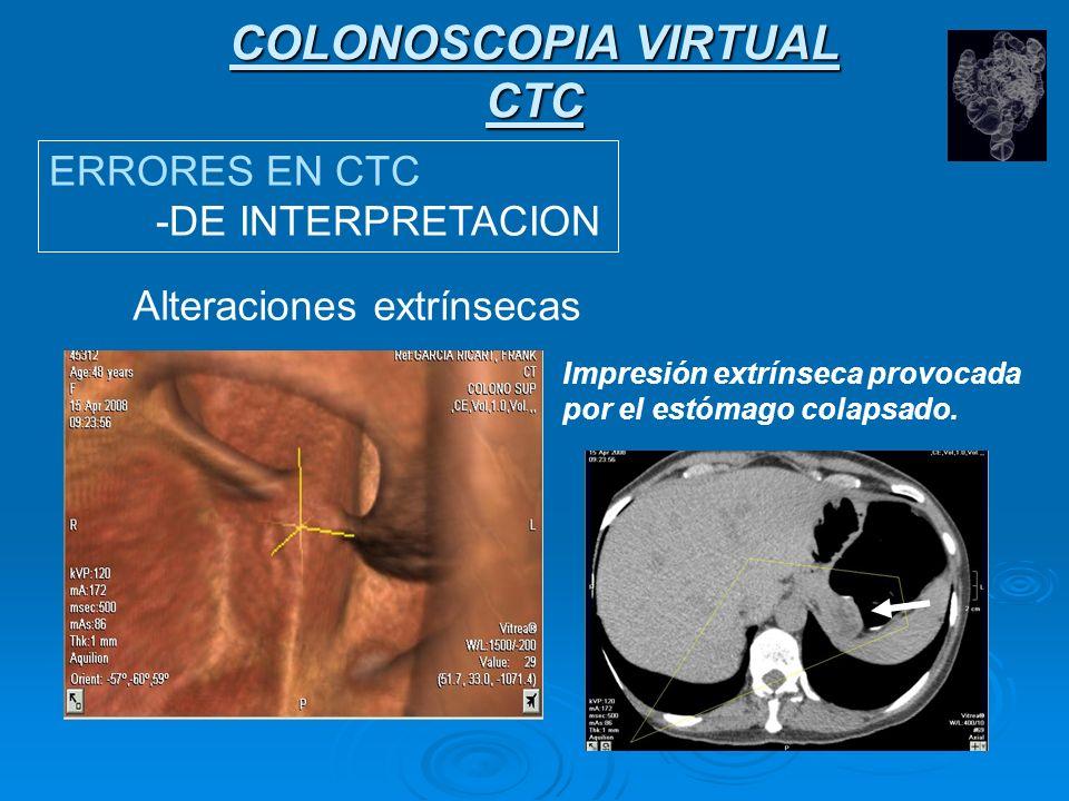 COLONOSCOPIA VIRTUAL CTC ERRORES EN CTC -DE INTERPRETACION Alteraciones extrínsecas Impresión extrínseca provocada por un vaso pericolónico normal