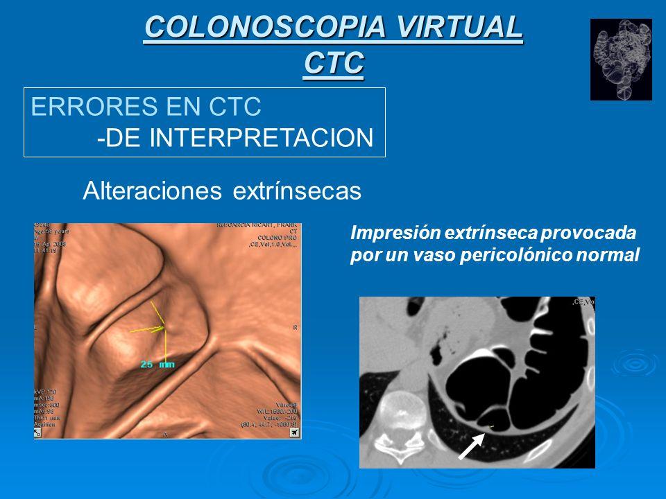 COLONOSCOPIA VIRTUAL CTC ERRORES EN CTC -DE INTERPRETACION Alteraciones extrínsecas Impresión extrínseca provocada por una costilla