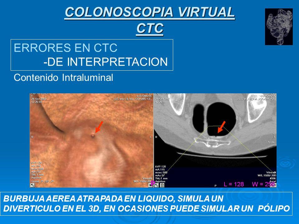 COLONOSCOPIA VIRTUAL CTC ERRORES EN CTC -DE INTERPRETACION Contenido Intraluminal MOCO: Estructura lineal, filiforme, entre dos hasutras.