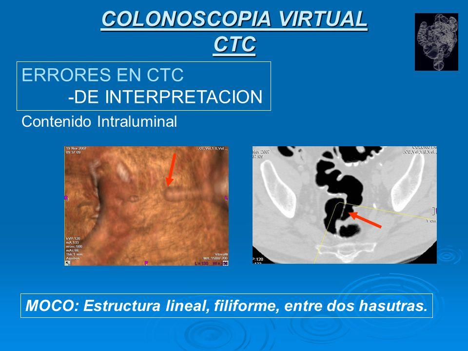 COLONOSCOPIA VIRTUAL CTC ERRORES EN CTC -DE INTERPRETACION Contenido Intraluminal ESTALACTITA DE CONTRASTE, HECES O MOCO.