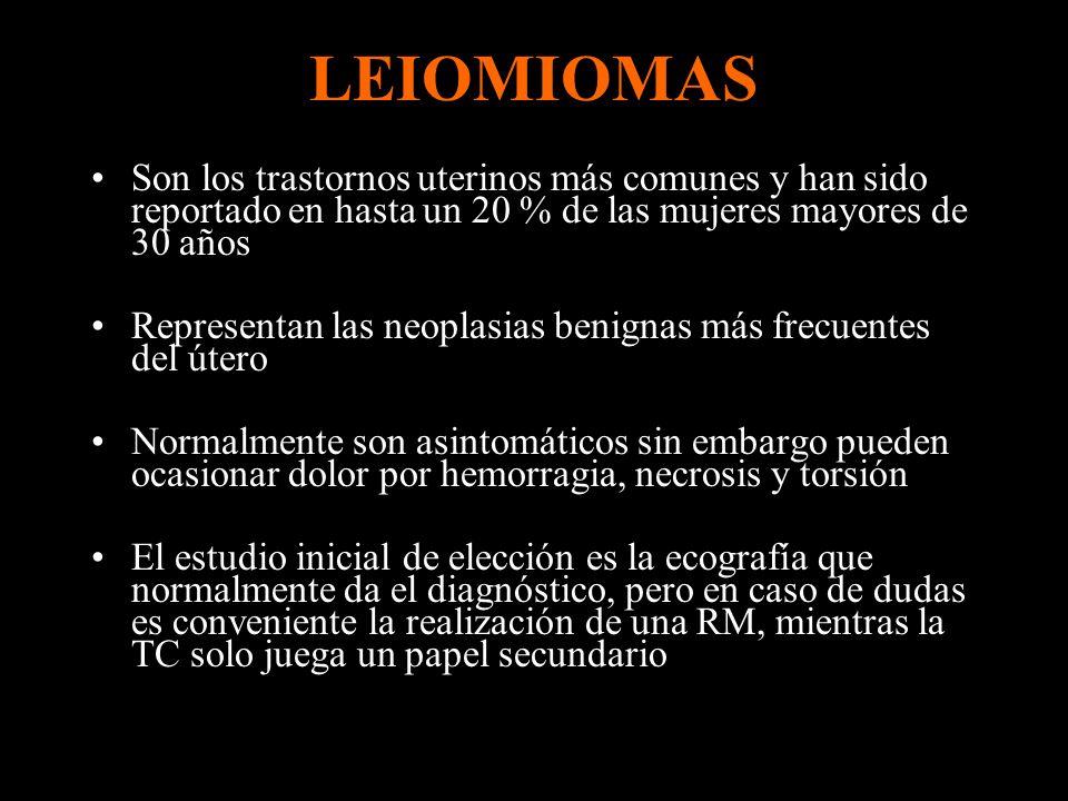 Clasificación de leiomiomas Según su situación en el útero: –intramural –submucoso –subseroso: mayor riesgo de torsión Según su apariencia: –Útero aumentado de tamaño con ecogenicidad heterogénea por pequeños leiomiomas difusos –Lesiones localizadas hipoecoicas o heterogéneas