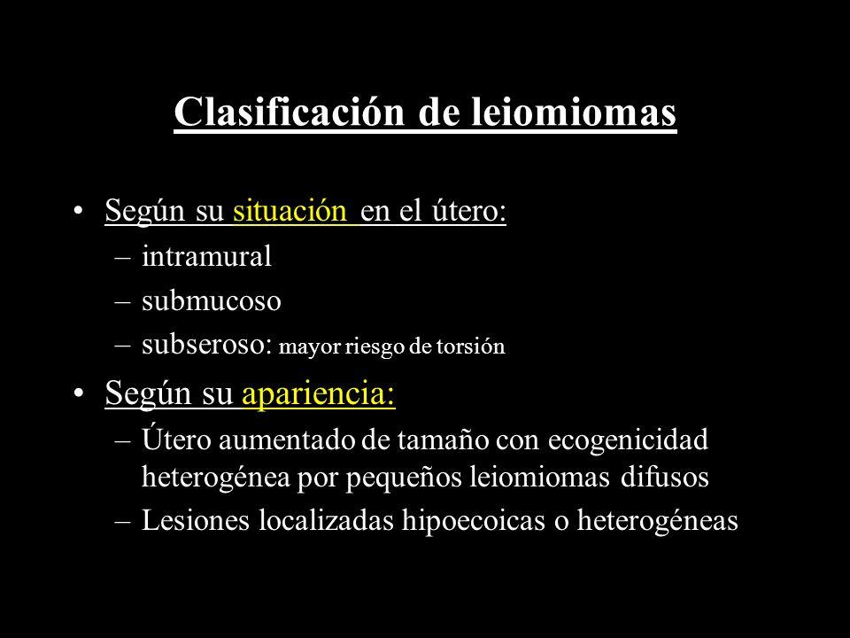 Clasificación de leiomiomas Según su situación en el útero: –intramural –submucoso –subseroso: mayor riesgo de torsión Según su apariencia: –Útero aum