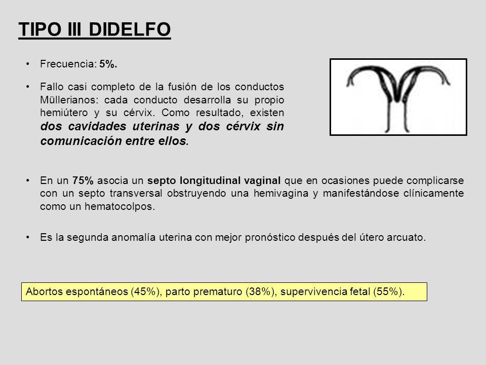 TIPO III DIDELFO Frecuencia: 5%. Fallo casi completo de la fusión de los conductos Müllerianos: cada conducto desarrolla su propio hemiútero y su cérv