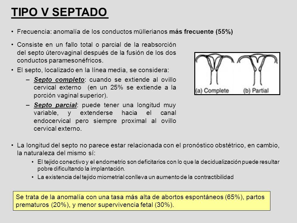 Consiste en un fallo total o parcial de la reabsorción del septo úterovaginal después de la fusión de los dos conductos paramesonéfricos. El septo, lo