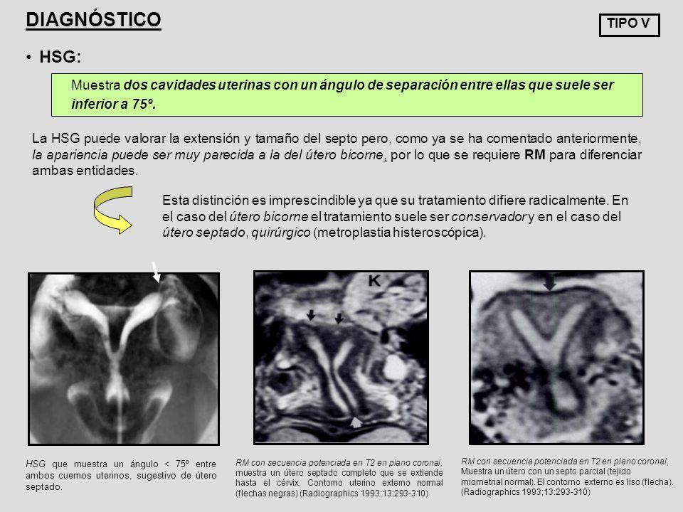 HSG que muestra un ángulo < 75º entre ambos cuernos uterinos, sugestivo de útero septado. TIPO V DIAGNÓSTICO HSG: Muestra dos cavidades uterinas con u