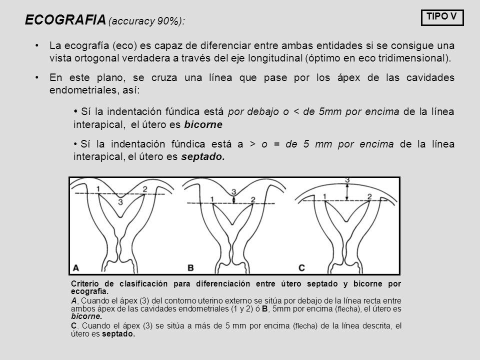 Criterio de clasificación para diferenciación entre útero septado y bicorne por ecografía. A, Cuando el ápex (3) del contorno uterino externo se sitúa