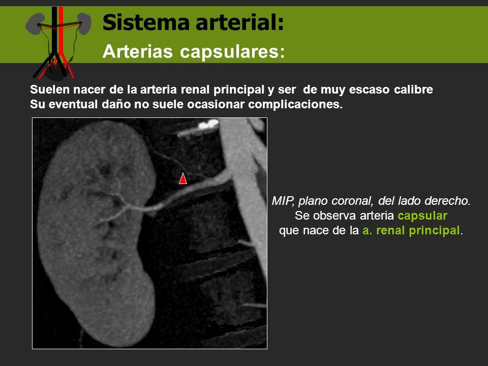 Sistema arterial: Suelen nacer de la arteria renal principal y ser de muy escaso calibre Su eventual daño no suele ocasionar complicaciones. Arterias