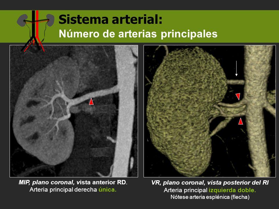 MIP, plano coronal, vista anterior RD. Arteria principal derecha única. Sistema arterial: VR, plano coronal, vista posterior del RI Arteria principal