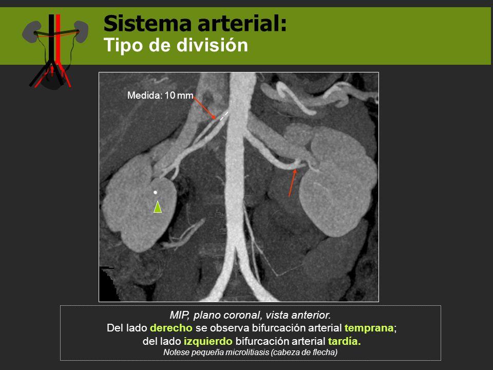 Sistema arterial: MIP, plano coronal, vista anterior. Del lado derecho se observa bifurcación arterial temprana; del lado izquierdo bifurcación arteri