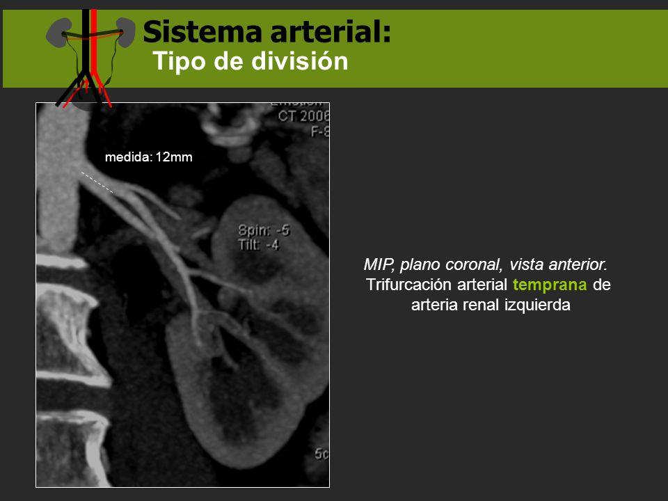 MIP, plano coronal, vista anterior. Trifurcación arterial temprana de arteria renal izquierda medida: 12mm Sistema arterial: Tipo de división