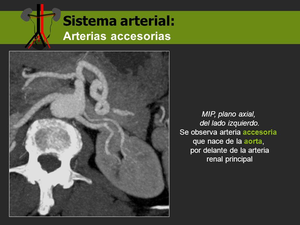 MIP, plano axial, del lado izquierdo. Se observa arteria accesoria que nace de la aorta, por delante de la arteria renal principal Sistema arterial: A