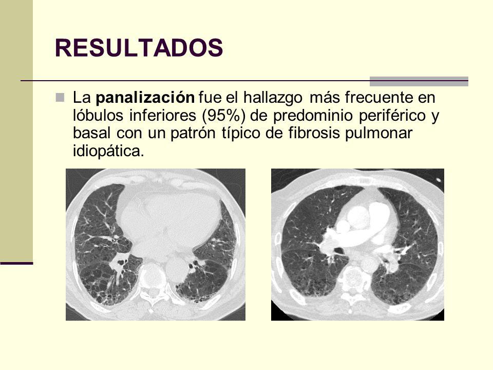 RESULTADOS La panalización fue el hallazgo más frecuente en lóbulos inferiores (95%) de predominio periférico y basal con un patrón típico de fibrosis