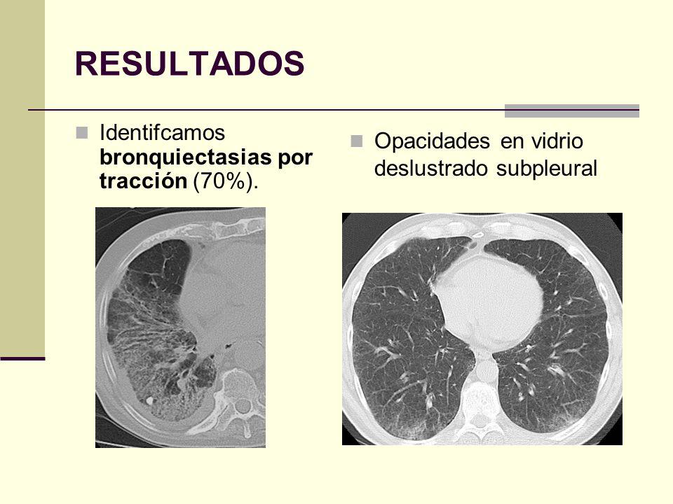 RESULTADOS Identifcamos bronquiectasias por tracción (70%). Opacidades en vidrio deslustrado subpleural