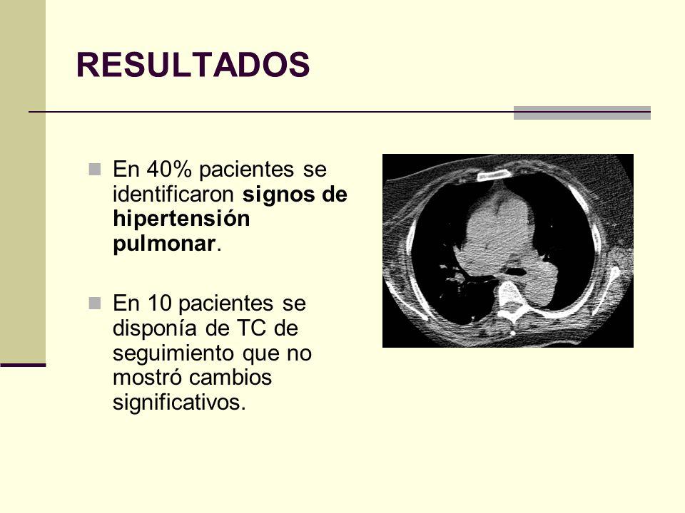 RESULTADOS En 40% pacientes se identificaron signos de hipertensión pulmonar. En 10 pacientes se disponía de TC de seguimiento que no mostró cambios s