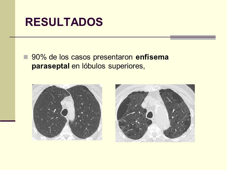 RESULTADOS Apariencia bullosa en 75% de los pacientes.