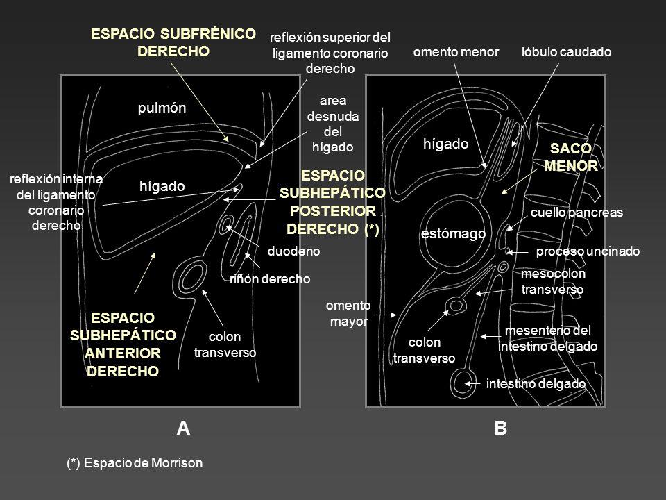 AB hígado pulmón ESPACIO SUBFRÉNICO DERECHO colon transverso riñón derecho duodeno ESPACIO SUBHEPÁTICO ANTERIOR DERECHO ESPACIO SUBHEPÁTICO POSTERIOR