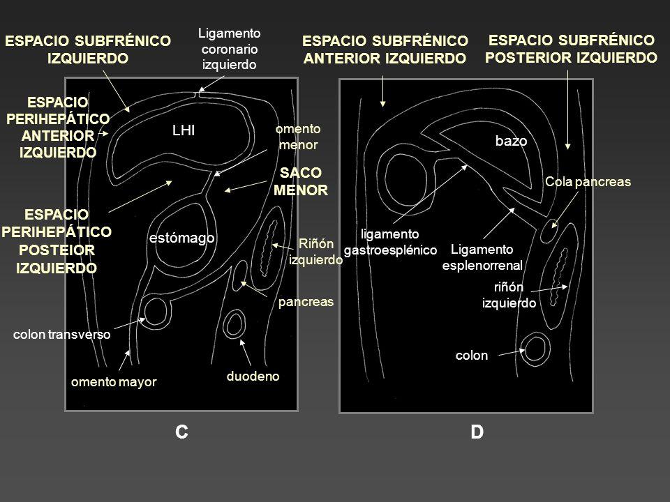 Ejemplo para repasar los espacios de la cavidad peritoneal en un varón de 36 años, ecuatoriano, con importante ascitis y afectación del epiplon mayor producida por una tuberculosis intestinal en la forma húmeda.