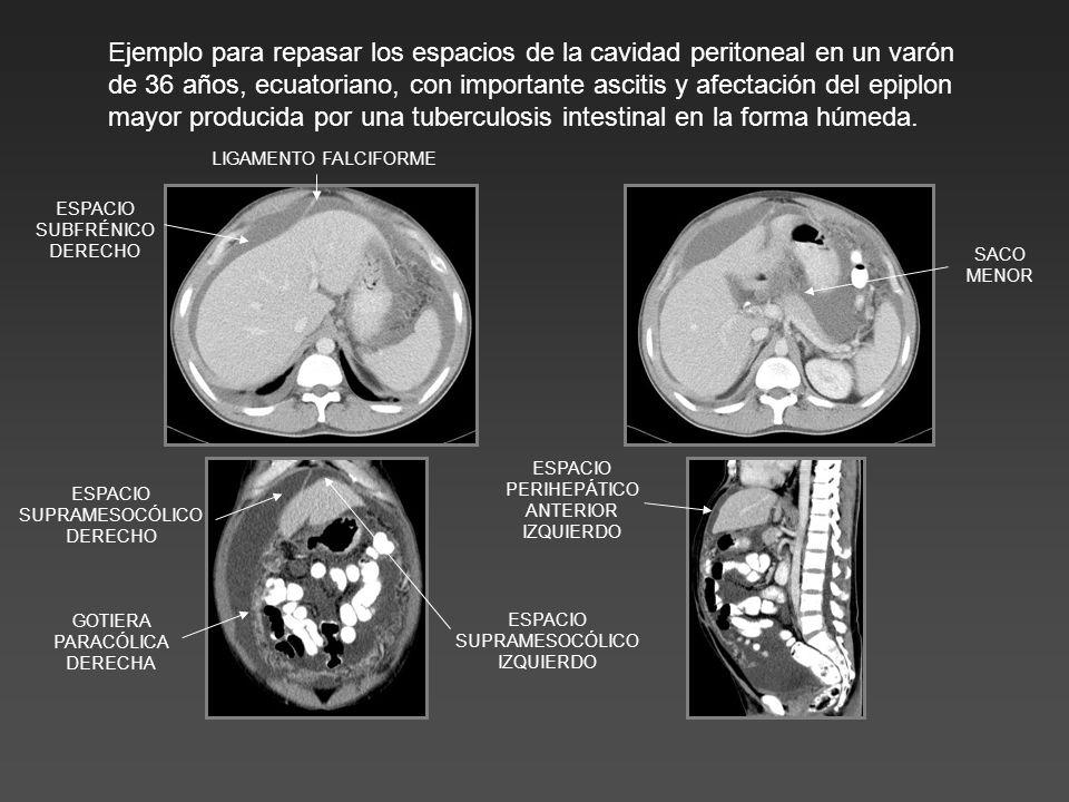 Ejemplo para repasar los espacios de la cavidad peritoneal en un varón de 36 años, ecuatoriano, con importante ascitis y afectación del epiplon mayor