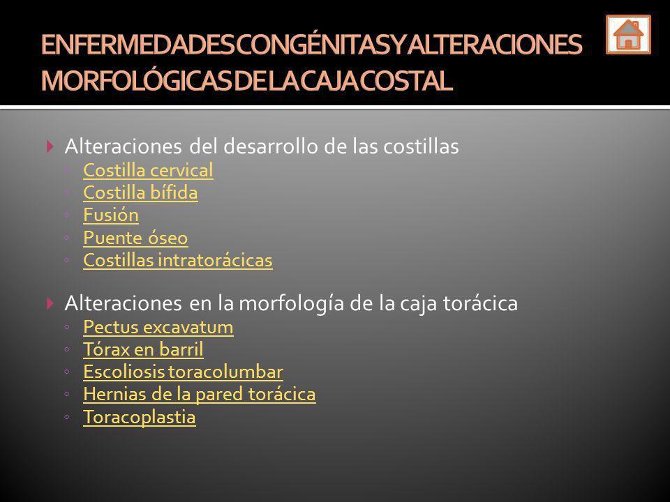 Alteraciones del desarrollo de las costillas Costilla cervical Costilla bífida Fusión Puente óseo Costillas intratorácicas Alteraciones en la morfolog