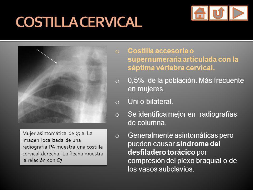 o Costilla accesoria o supernumeraria articulada con la séptima vértebra cervical. o 0,5% de la población. Más frecuente en mujeres. o Uni o bilateral