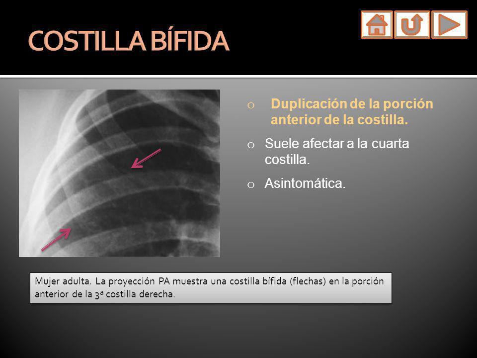 o Duplicación de la porción anterior de la costilla. o Suele afectar a la cuarta costilla. o Asintomática. Mujer adulta. La proyección PA muestra una