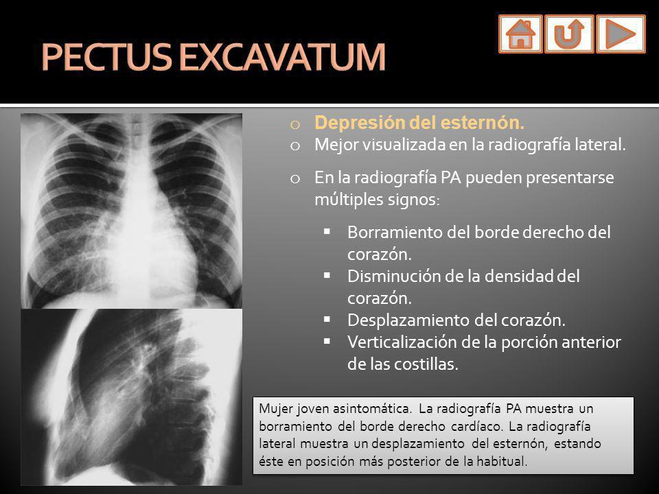 o Depresión del esternón. o Mejor visualizada en la radiografía lateral. o En la radiografía PA pueden presentarse múltiples signos: Borramiento del b