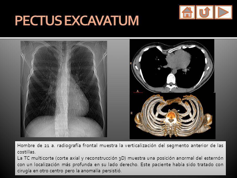 Hombre de 21 a. radiografía frontal muestra la verticalización del segmento anterior de las costillas. La TC multicorte (corte axial y reconstrucción