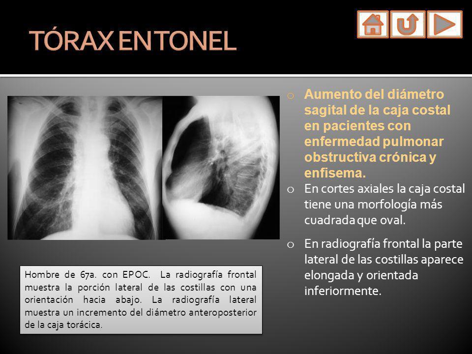 o Aumento del diámetro sagital de la caja costal en pacientes con enfermedad pulmonar obstructiva crónica y enfisema. o En cortes axiales la caja cost